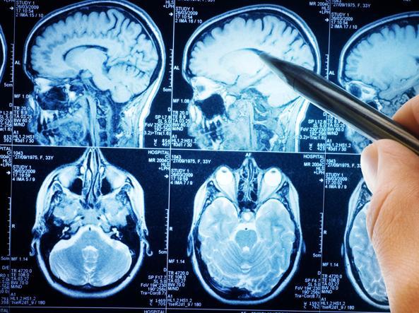 Tumori, scoperto il meccanismo che permette la formazione di metastasi al cervello